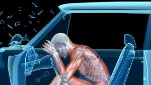 fisioterapeuta por accidente de trafico en sevilla