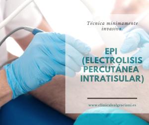 EPI SEvilla, tratamiento de columna vertebral sevilla